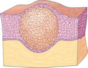 Illustratie van een vetbult