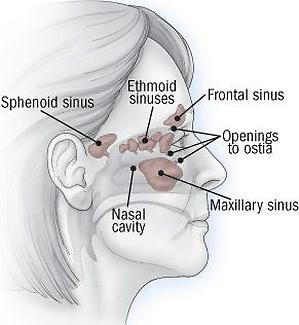 Can Sinus Cause Ringing In Ears