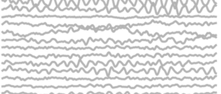 EEG patroon