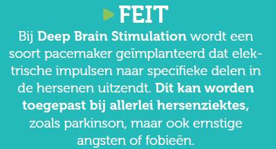Feit: bij Deep Brain Stimulation wordt een soort pacemaker geïmplanteerd dat elektrische impulsen naar specifieke delen in de hersenen uitzendt. Dit kan worden toegepast bij allerlei hersenziektes, zoals parkinson, maar ook ernstige angsten of fobieën.