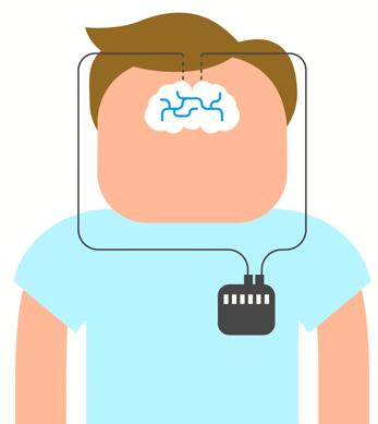 Illustratie: elektrode in hersenen verbonden met stimulator